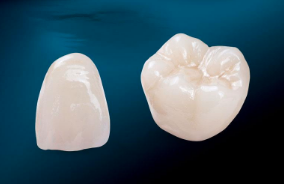 When Does Your Tooth Need a Dental Crown? | Meridian, ID