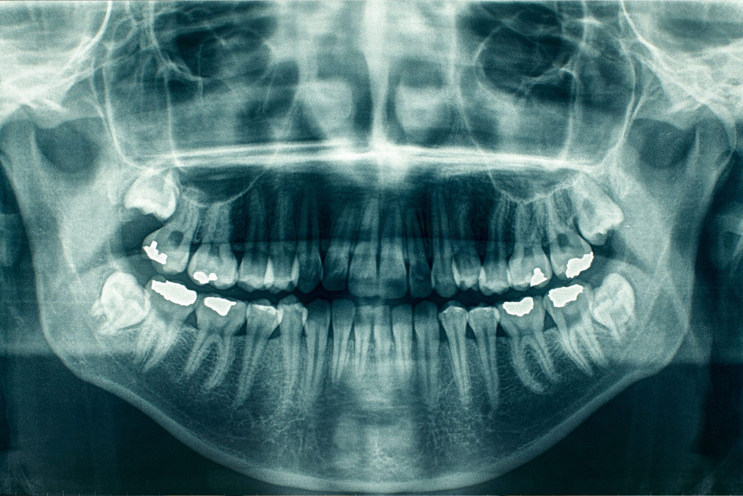 Dental Exam - Meridian Dentist - Riverbend Family Dental - Dental Xrays