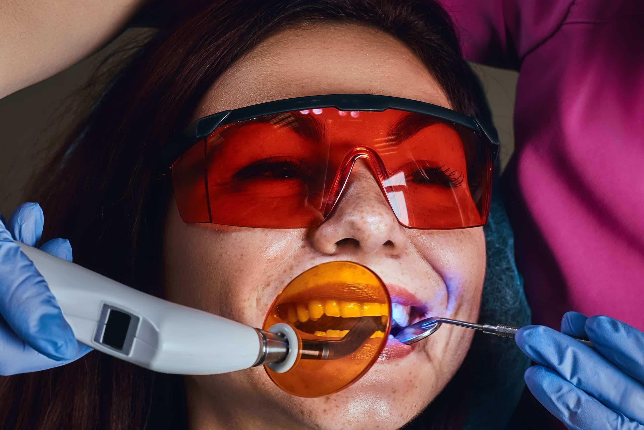 Tooth Bonding - Meridian Cosmetic Dentist - Riverbend Family Dental
